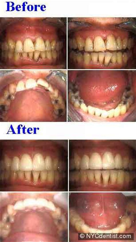 Ceramic crowns and porcelain onlays - NYC Dentist