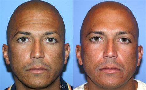 Botox Injections Scottsdale Beautiful Natural Results at